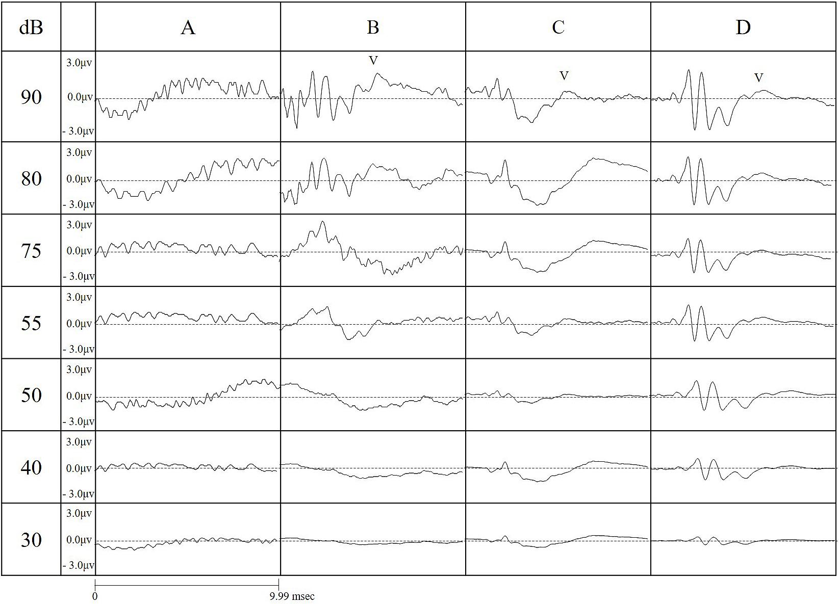 Refined Auditory Brainstem Response Measurement Identified
